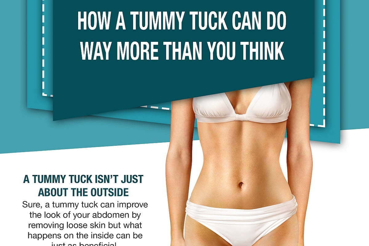 How a Tummy Tuck Can Do Way More Than You Think [Infographic]