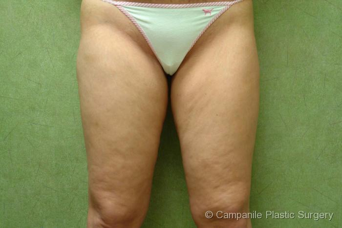 Liposuction - Case 62 - Before
