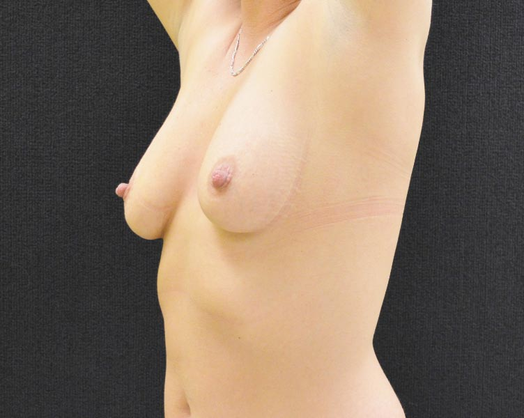 Breast Lift with Augmentation - Case 258 - Before