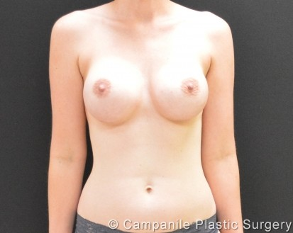 Breast Augmentation - Case 283 - After