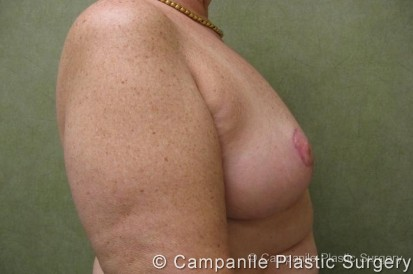 Breast Reduction Patient Photo - Case 167 - after view