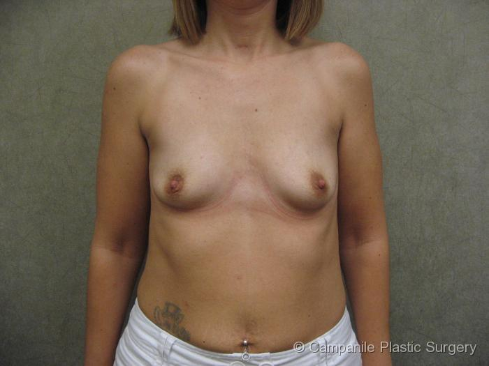 Breast Augmentation Patient Photo - Case 102 - before view-
