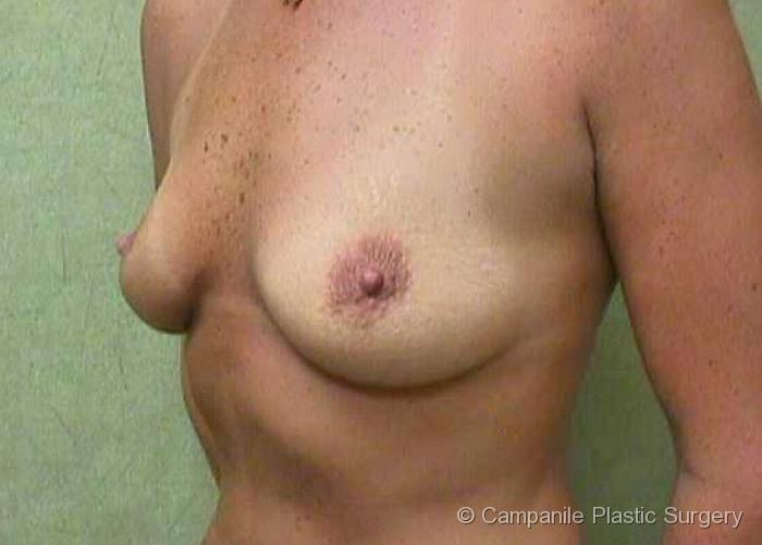 Breast Augmentation Patient Photo - Case 128 - before view-0