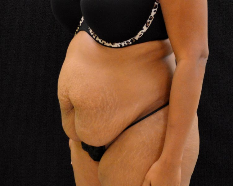 C.L.A.S.S.® Tummy Tuck Patient Photo - Case 221 - before view-