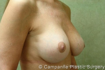 Breast Surgery Revision Patient Photo - Case 177 - after view-1