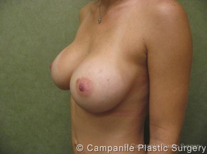 Breast Augmentation Patient Photo - Case 122 - after view