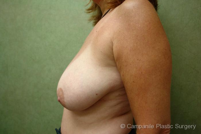 Breast Reduction - Case 169 - Before