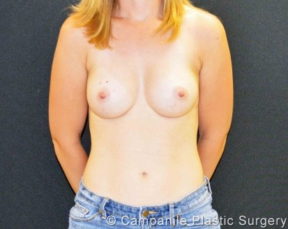 Breast Augmentation - Case 334 - After