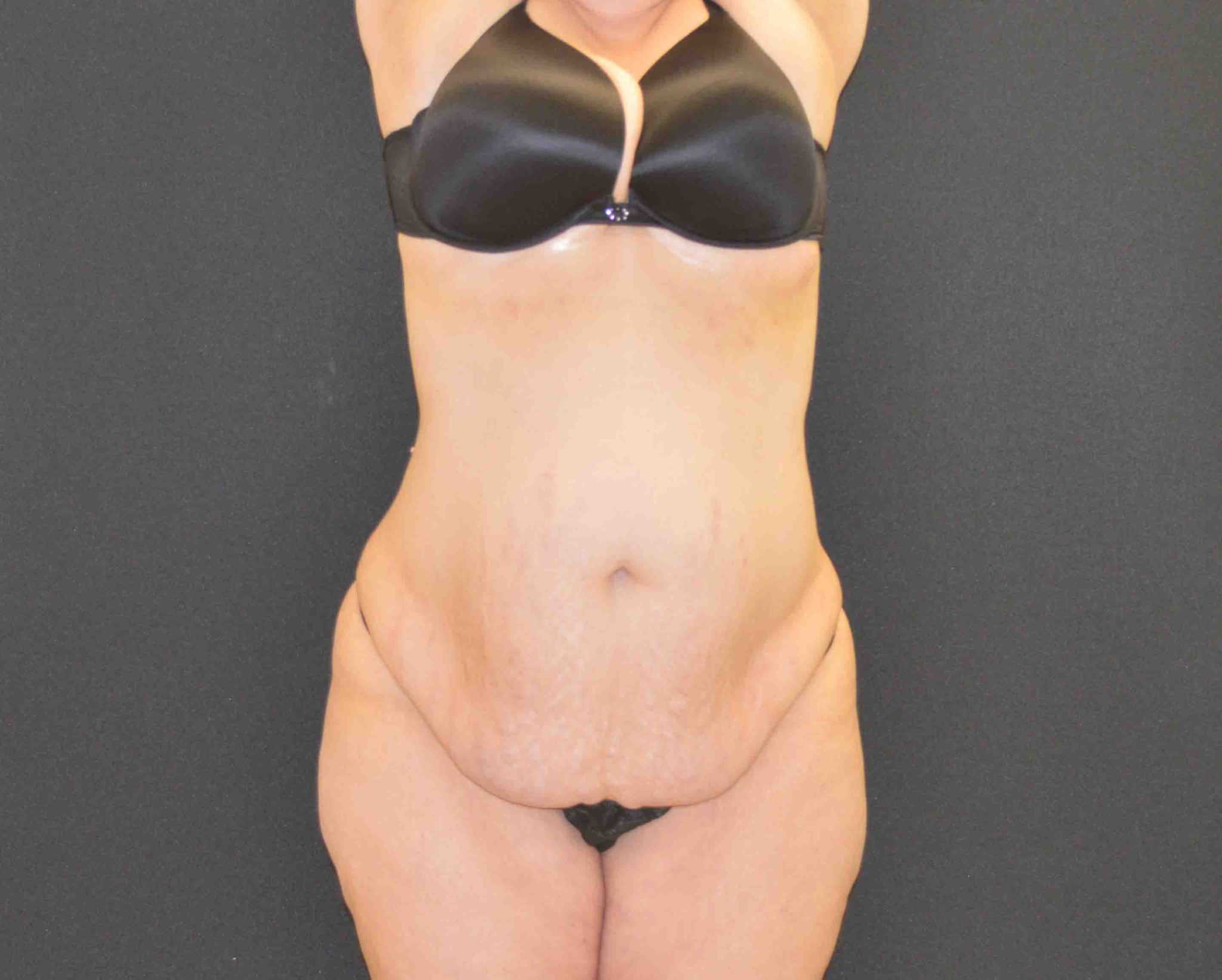 C.L.A.S.S.® Tummy Tuck - Case 358 - Before