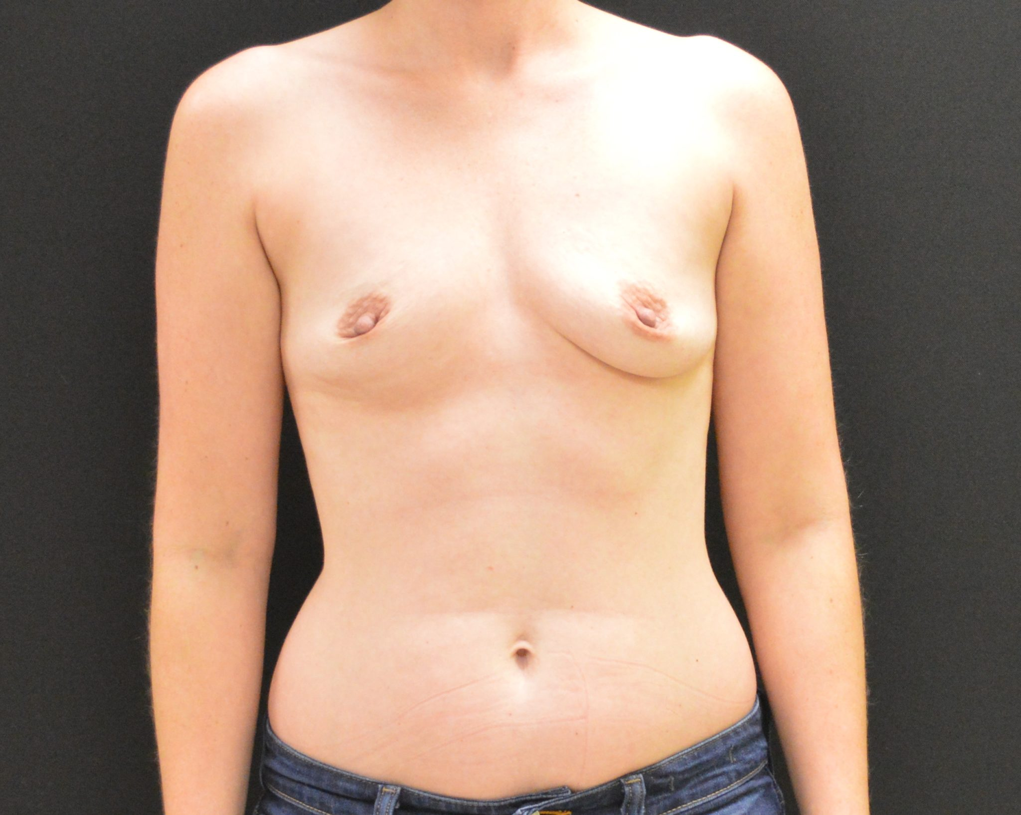Breast Augmentation - Case 283 - Before