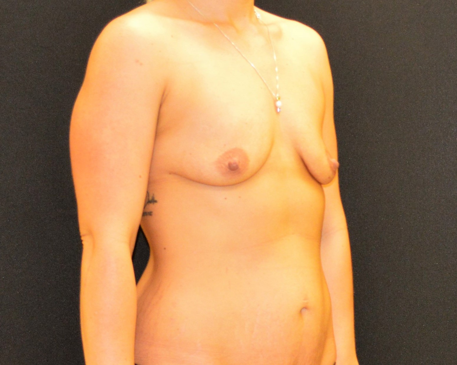 Breast Augmentation - Case 421 - Before