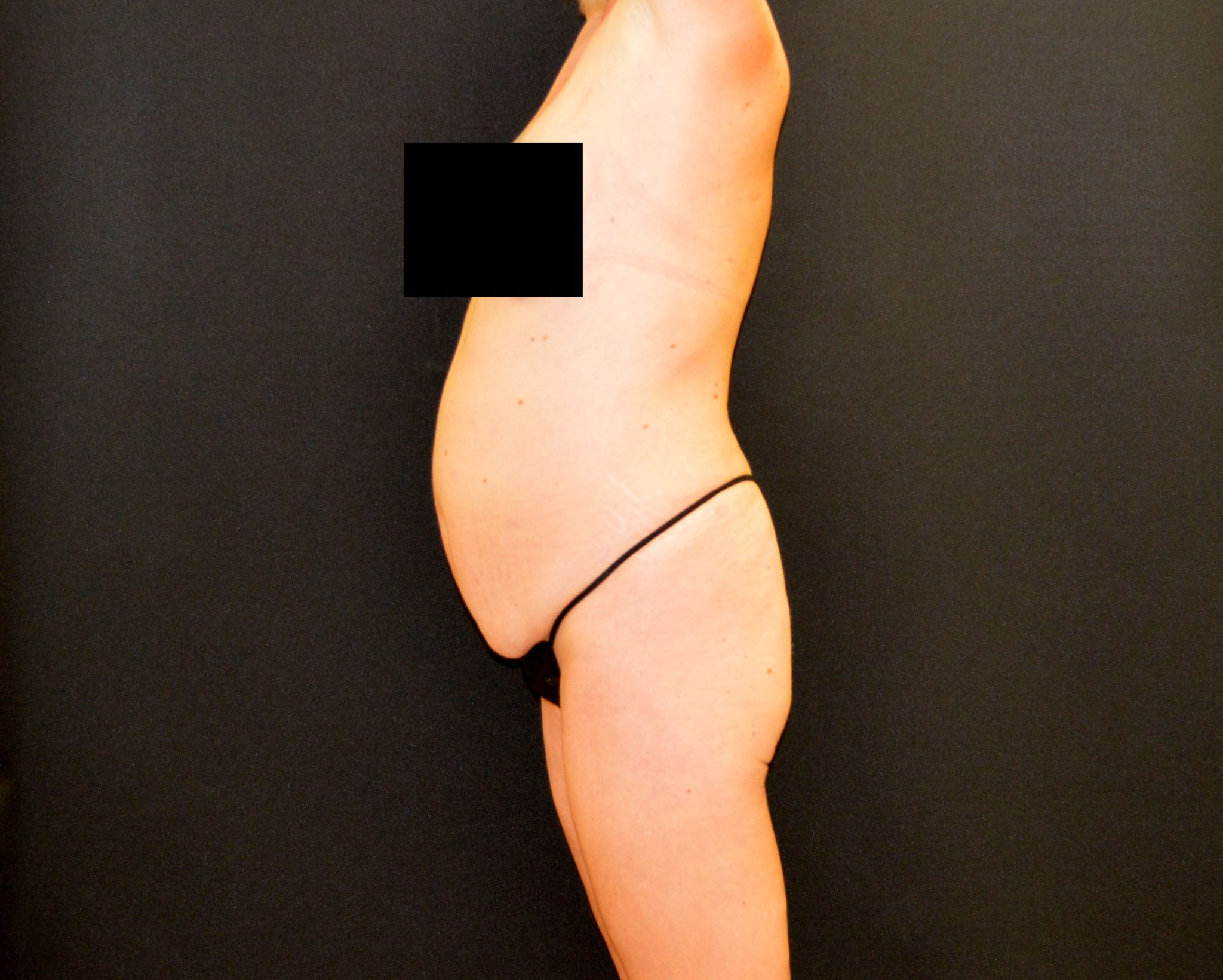 C.L.A.S.S.® Tummy Tuck - Case 440 - Before