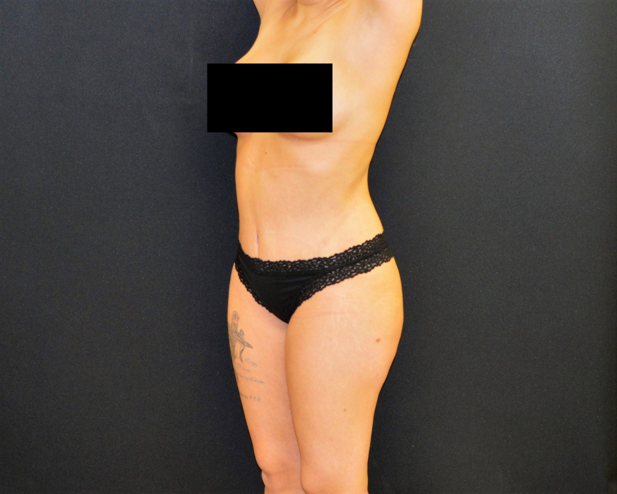 C.L.A.S.S.® Tummy Tuck - Case 450 - After