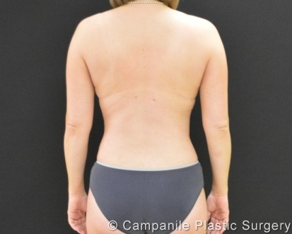 Liposuction - Case 262 - After