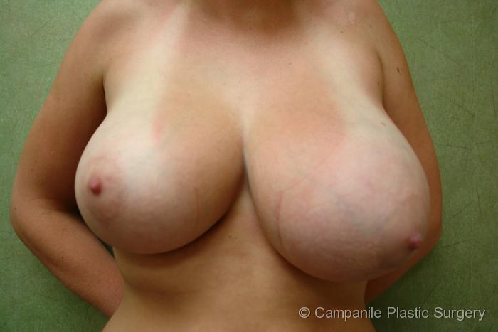 Breast Reduction Patient Photo - Case 174 - before view-