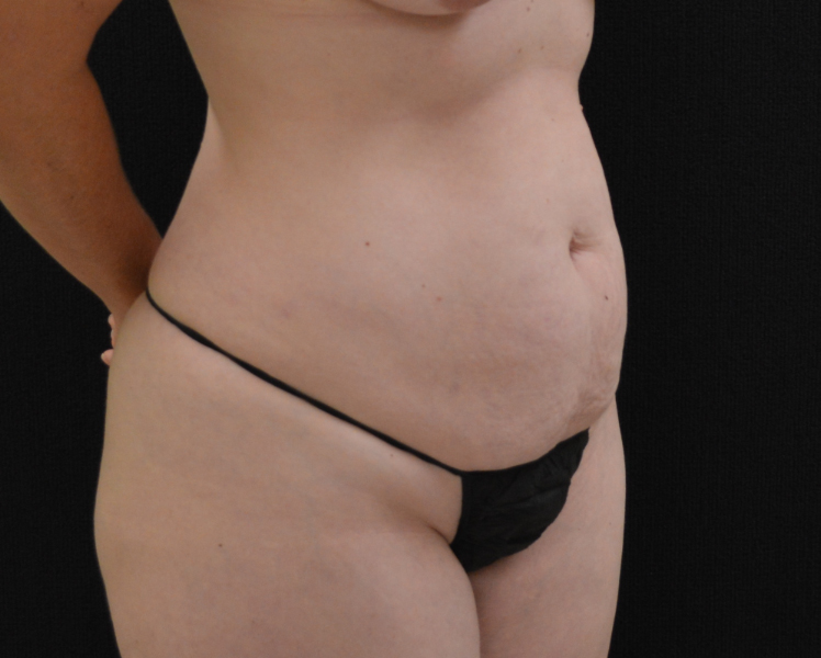 C.L.A.S.S.® Tummy Tuck Patient Photo - Case 212 - before view-