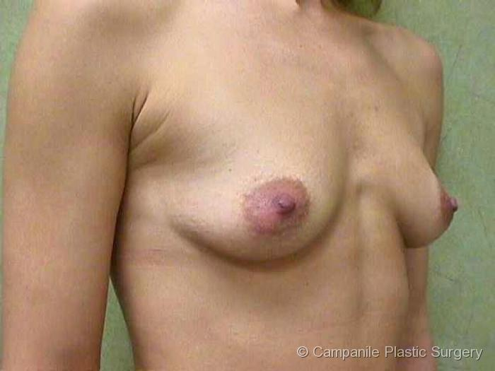 Breast Augmentation - Case 134 - Before