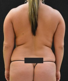 Liposuction - Case 217 - Before