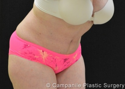 C.L.A.S.S.® Tummy Tuck Patient Photo - Case 204 - after view
