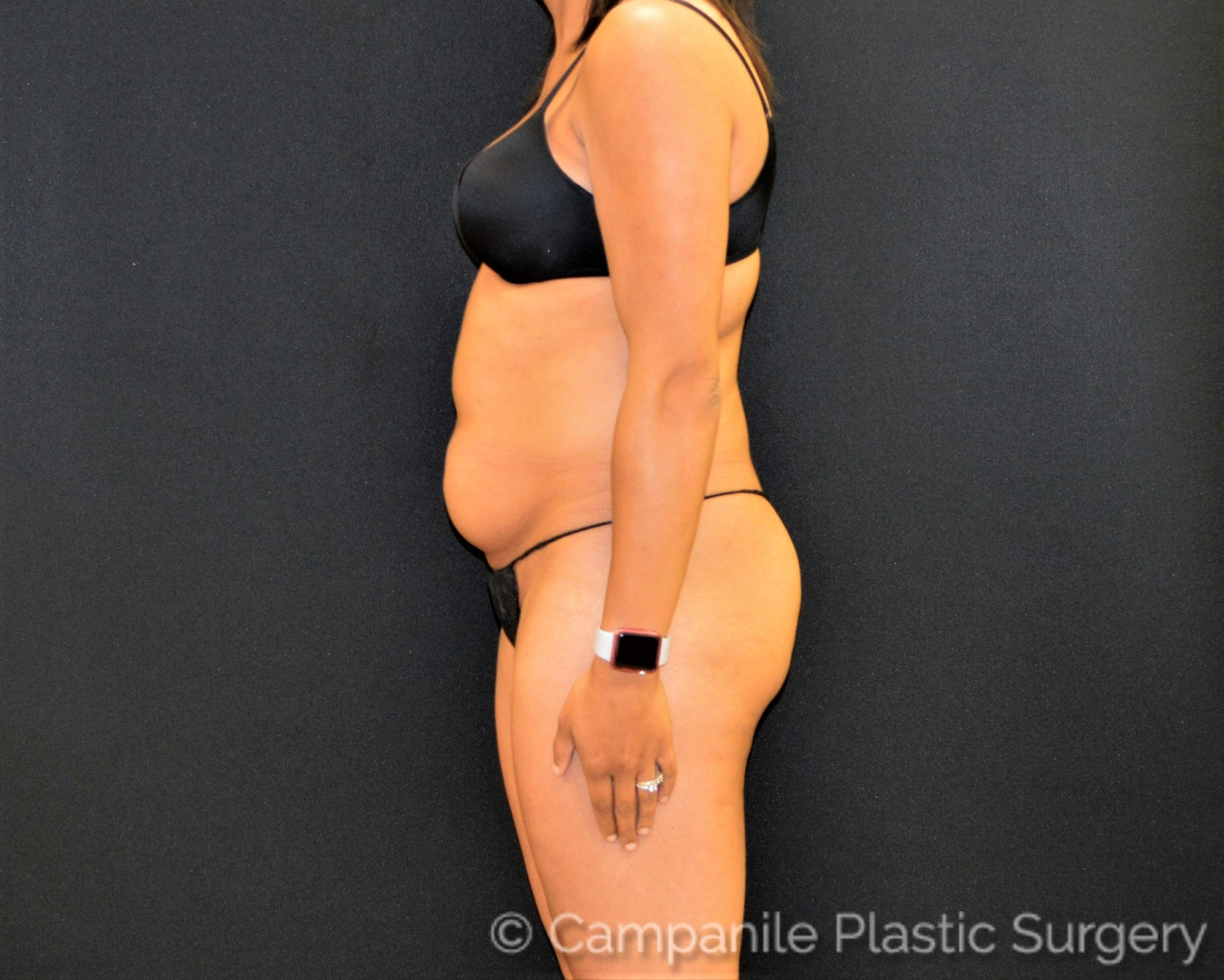 Liposuction - Case 7805 - Before