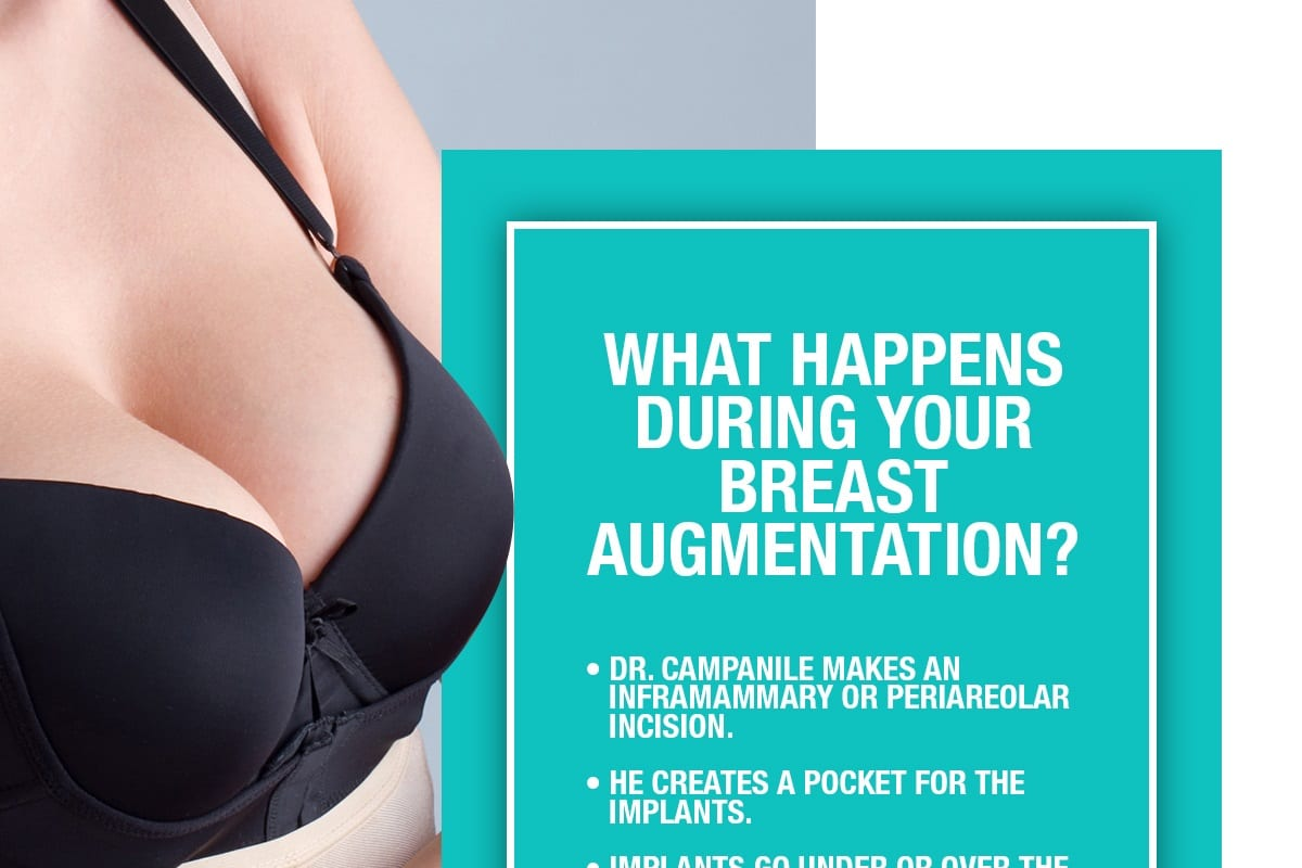 What Happens During Your Breast Augmentation? [Infographic]