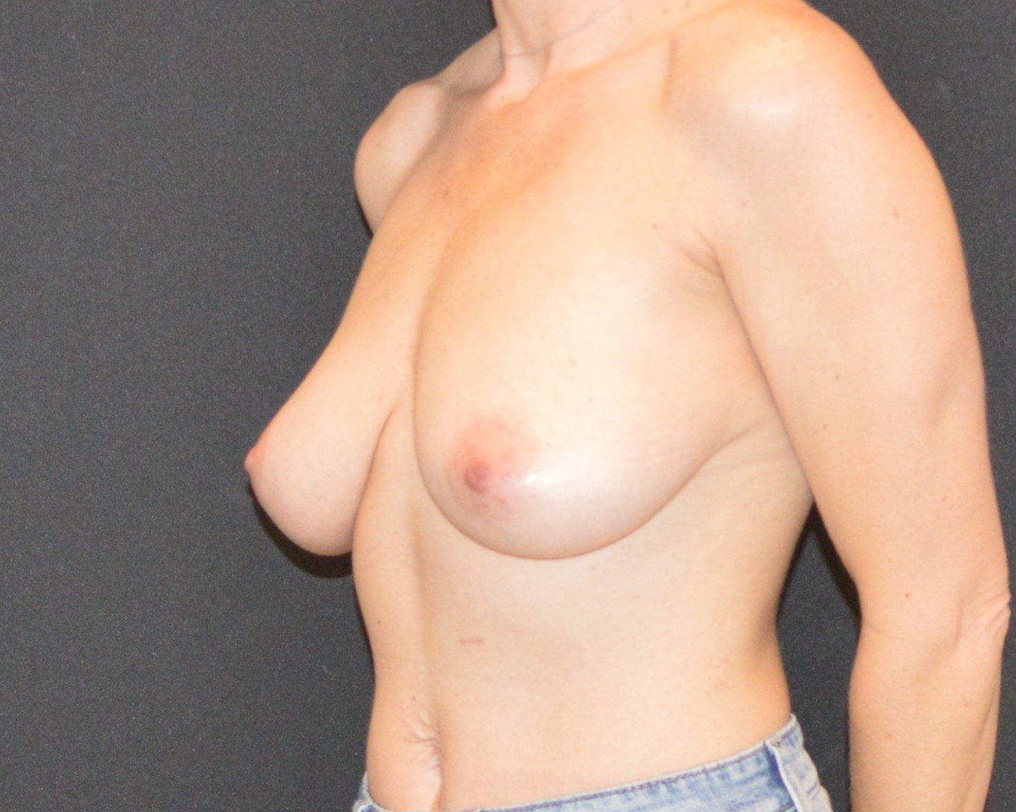 Breast Lift Patient Photo - Case 10833 - before view-